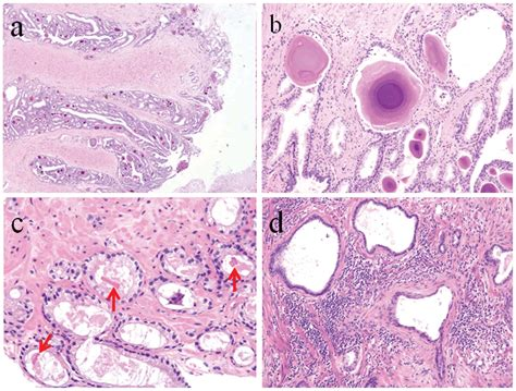Incidental prostate 18F-FDG uptake without calcification