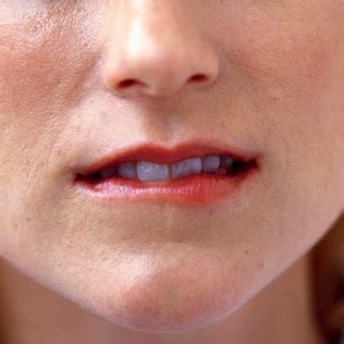 Anti-fungus cream eased cracks at corners of mouth   The