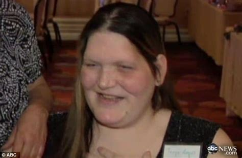 Woman who couldn't stop growing dies at age 34