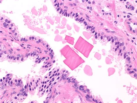 student_topics: Prostate and Seminal Vesicles