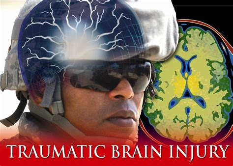 Two-drug combo may improve traumatic brain injury therapy