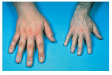 Acromegaly and gigantism